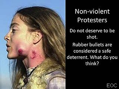 Occupy Wall Streeter Protester shot with rubber bullets